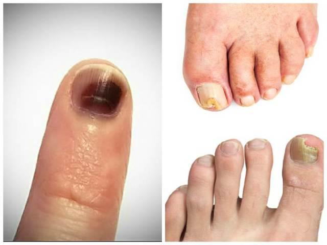 Микоз ногтей: что это такое, препараты и лечение грибковых заболеваний