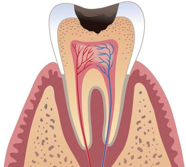 Отбеливающий карандаш для зубов: как пользоваться, побочные эффекты