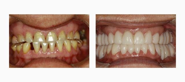 Имплантация зубов под наркозом — общая анестезия в имплантологии