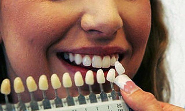 Синус-лифтинг в стоматологии и его осложнения: открытый и закрытый, фото