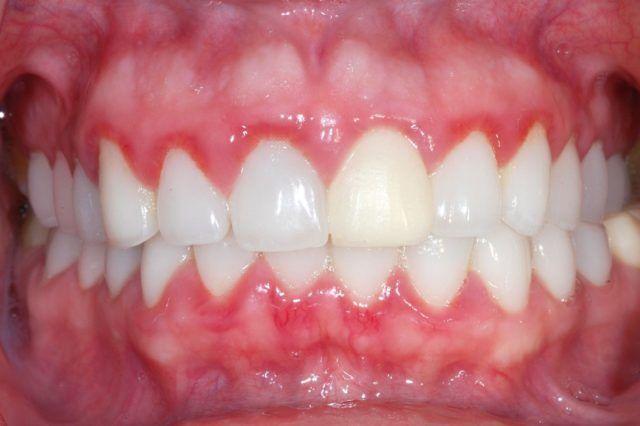 Дисбактериоз полости рта: причины, симптомы, лечение, последствия и профилактика