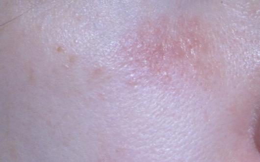 Шелушащиеся пятна на коже (сухие, шершавые, круглые), почему шелушатся на лице