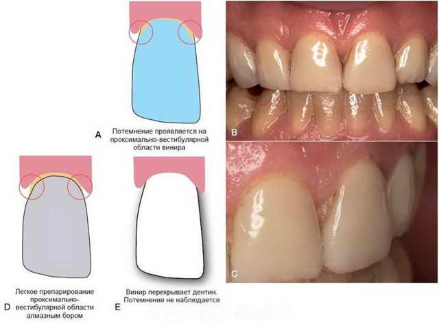 Препарирование зубов под виниры: необходимость обточки, методы и этапы процедуры